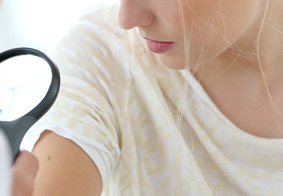 Cronificar el melanoma será posible en algunos casos