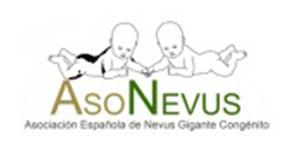 Asociación Española de Nevus Gigante Congénito