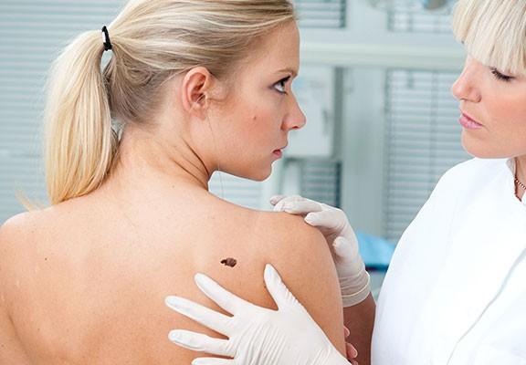La modificación del virus del herpes labial ayuda a combatir el melanoma