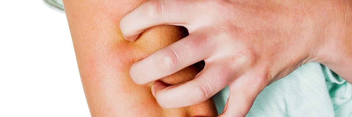 Actualización en Infecciones Cutáneas y Dermatología Tropical