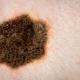 Registro de melanoma