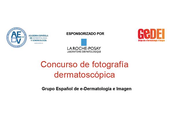 concurso fotografia dermatoscopica
