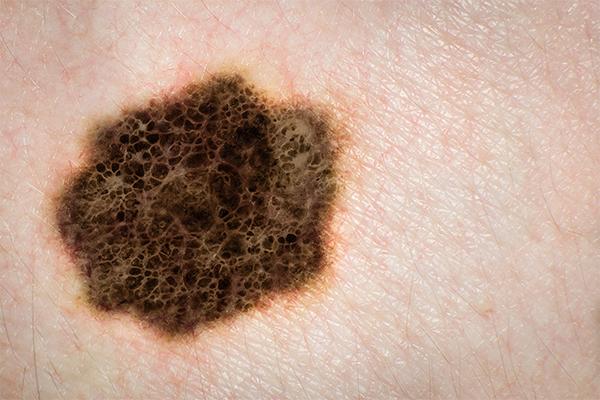 día mundial melanoma