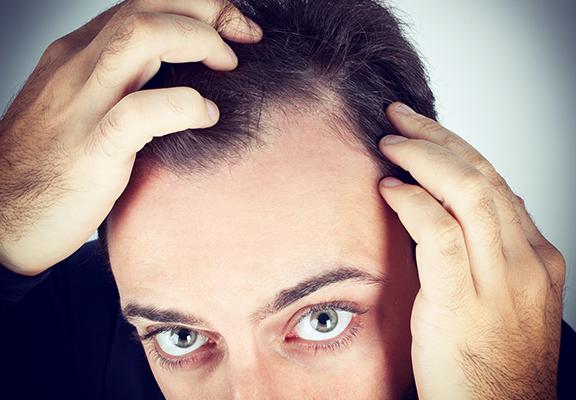 consejos caída del cabello