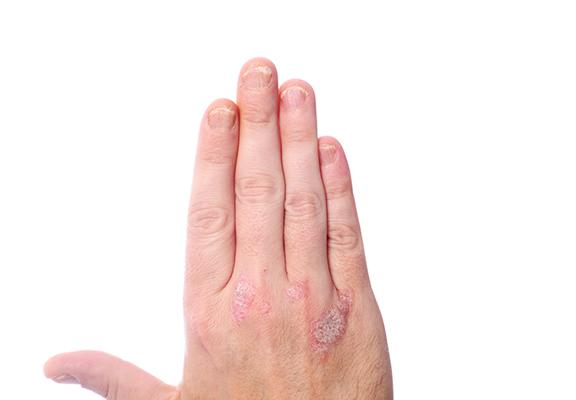 infecciones en pacientes con psoriasis