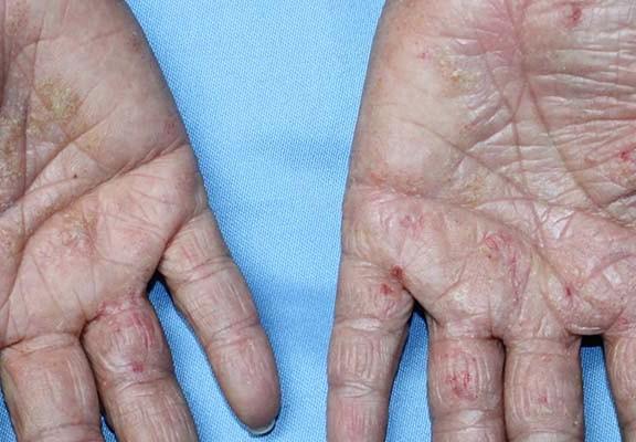 Ezcema crónico de manos