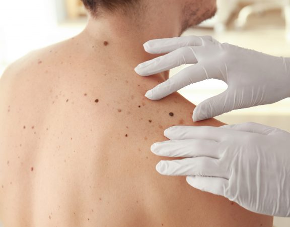 Dermatólogos no hospitalarios